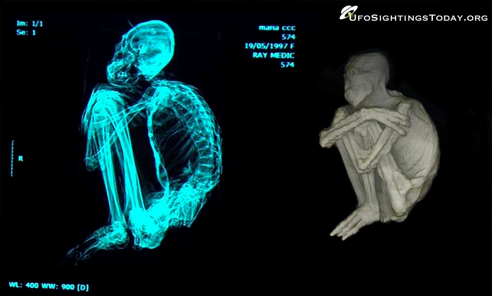 nazca alien x-ray